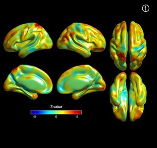 참여자의 문화예술교육 이후 뇌 피질 두께의 변화